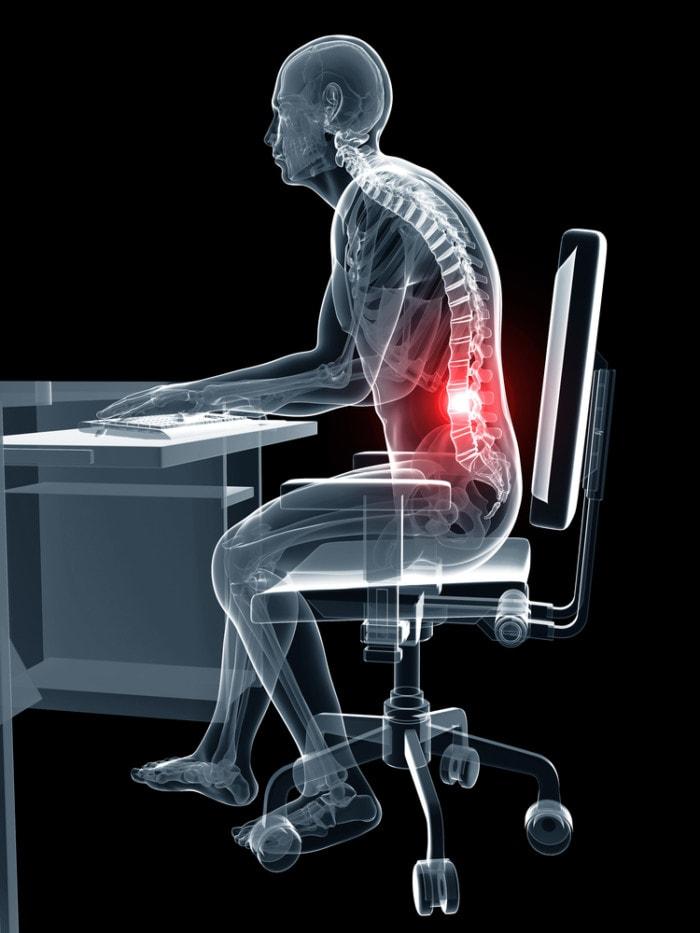 Dolor de espalda por mala postura al estar sentado en la oficina